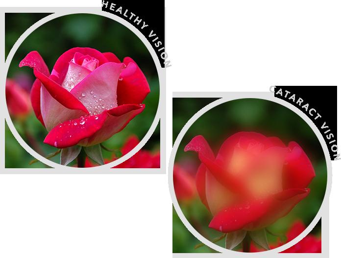 Healthy Vision vs Cataract Vision