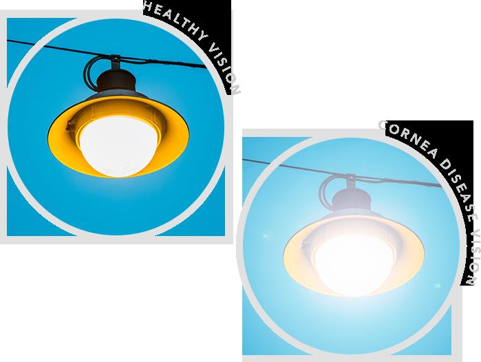 Healthy Vision vs Glaucoma Vision
